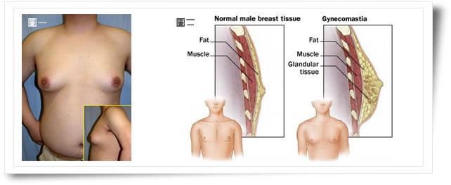 内视镜男性女乳症